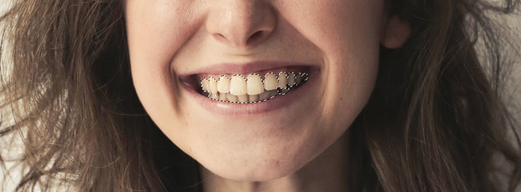 Teeth selecting with laso tool